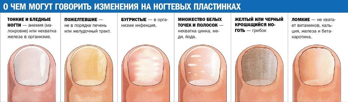 Mikozės ant nagų schema